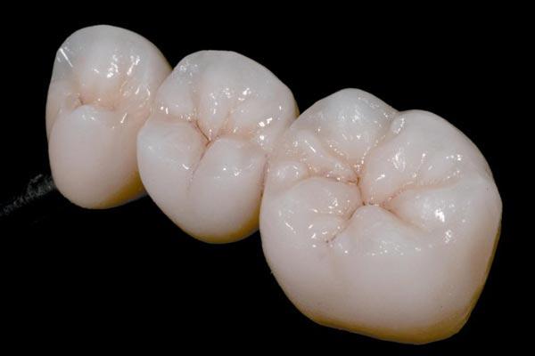 Скільки служитиме зубна коронка?