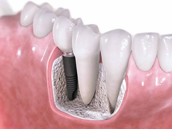 Імплантація зубів в Тернополі