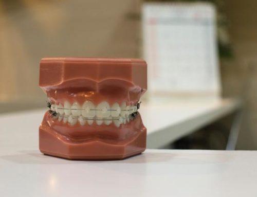 Ортодонт в Тернополі