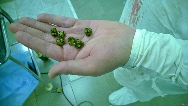 Камені в жовчному міхурі: симптоми і лікування